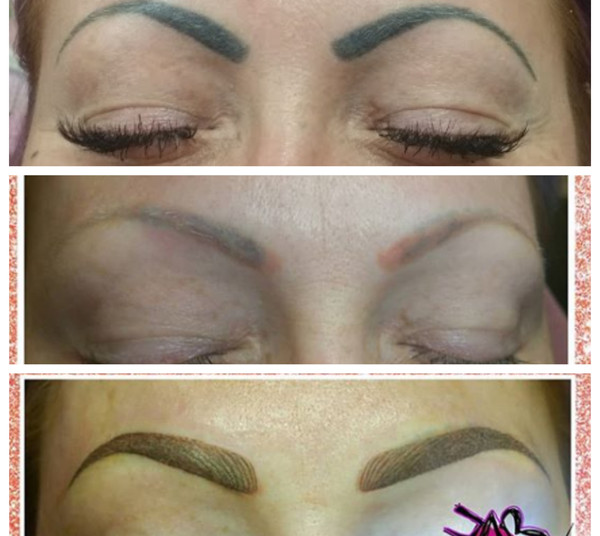 Brow Correction.jpg