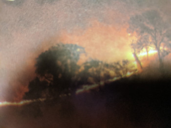 カリフォルニアの山火事