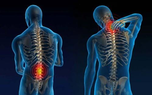 Dores nas costas são o principal motivo de afastamento do trabalho