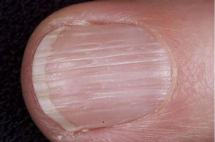 Taking care of the natural nail