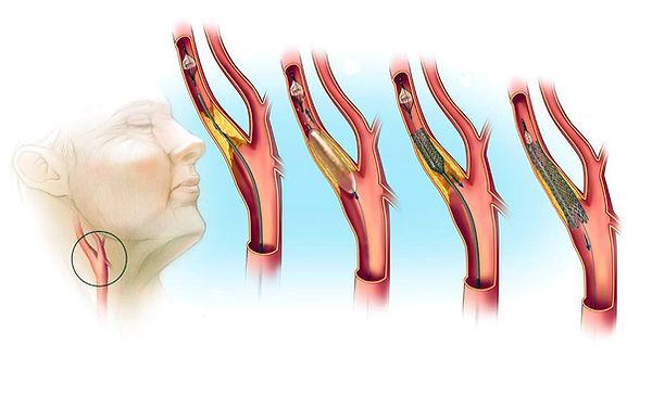 85153518-ateroskleroz-sonnyh-arteriy.jpg