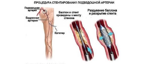 priznaki-ateroskleroza_3-400x266.jpg