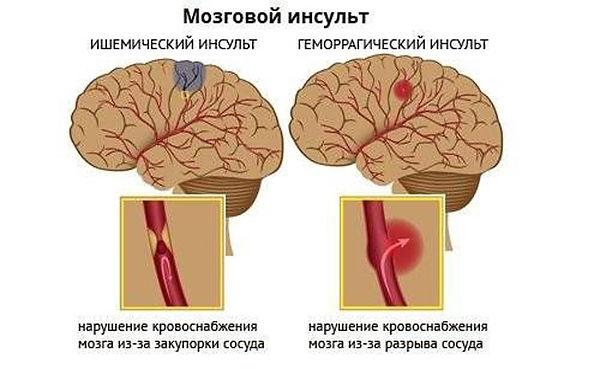 Mozgovoj-insult.jpg