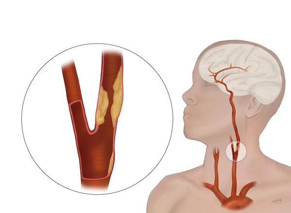 Ateroskleroz-sonnyh-arterij.jpg