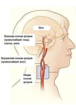 sonnaya-arteria.jpg