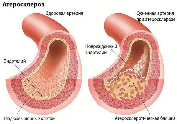 Атеросклероз-сосудов-нижних-конечностей-