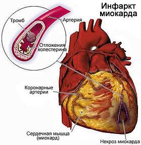 infarkt-miokarda(1).jpg
