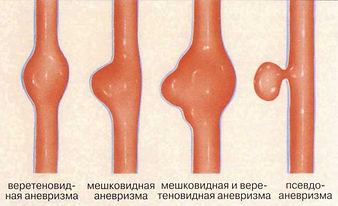 kakiye-bivayut-anevrizmi(1).jpg
