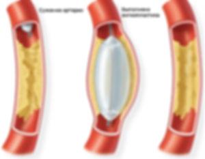 Баллонная-ангиопластика-артерий-конечнос