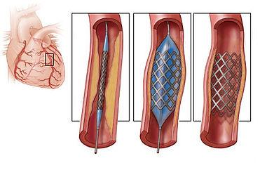 stent3.jpg