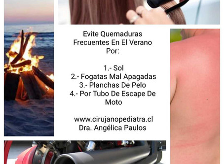 Evitemos quemaduras en el verano por: