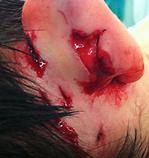 Heridas de Pabellón Auricular