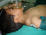 Linfangioma Cervical