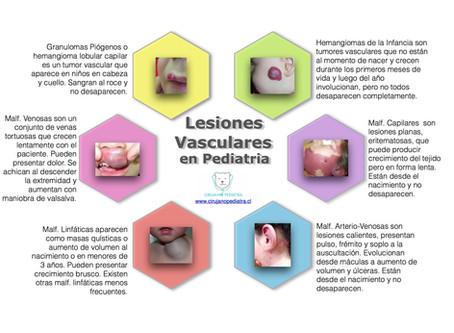 Lesiones Vasculares en Pediatría