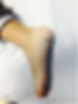 Malformación venosa en el pie