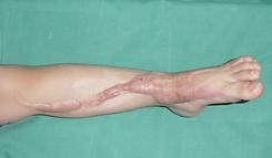 Cicatriz hipertrófica y queloidea