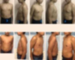 Crecimiento de los pechos en los varones