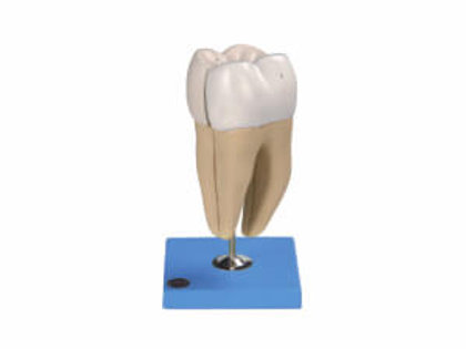 Lower Incisor With Two Roots