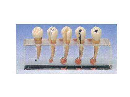 Clinical Model Of Endodontics