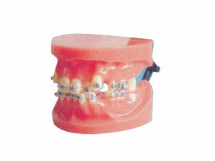 Fixed Orthodontic Model (dislocation)