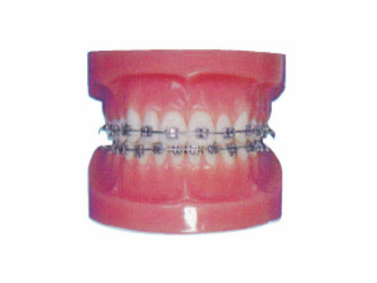 Fixed Orthodontic Model (normal)