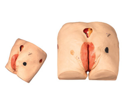 Decubitus Ulcer Care Simulator