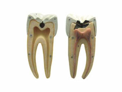 Dental Caries Model