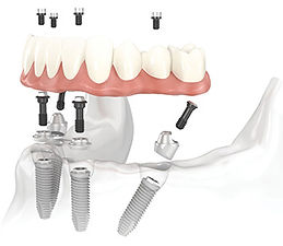 implants-all-on-4.jpg