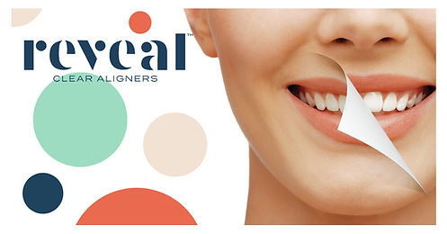 Reveal_Clear_Aligners_Patient_Instagram-