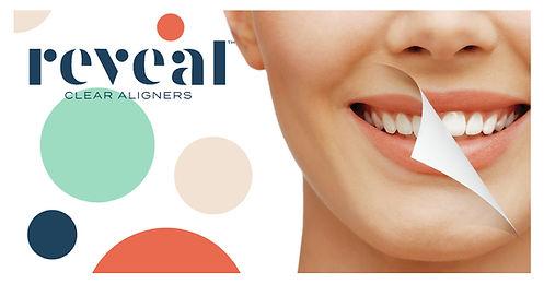Reveal_Clear_Aligners_Patient_Instagram-