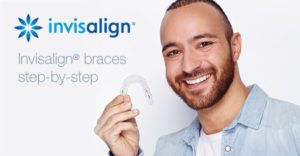 invisalign-braces-step-by-step-blog-300x