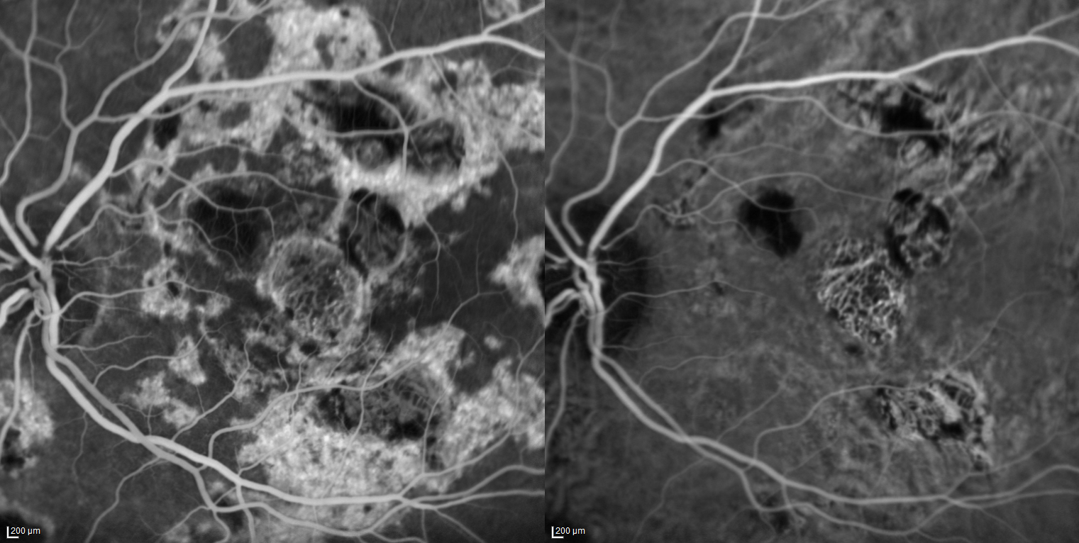 Macular Degeneration (Fluorescin + ICG)