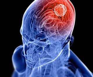 Neuro-oncologia-é-inovação-no-tratamento-de-tumores-cerebrais.jpg