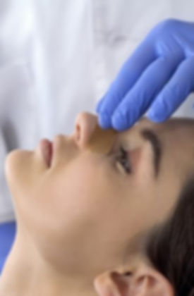 rinoplastia-clinica-vanite.jpg