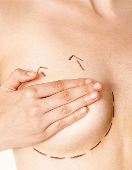 mastopexia-cirurgia-plastica-vanite_edited.jpg