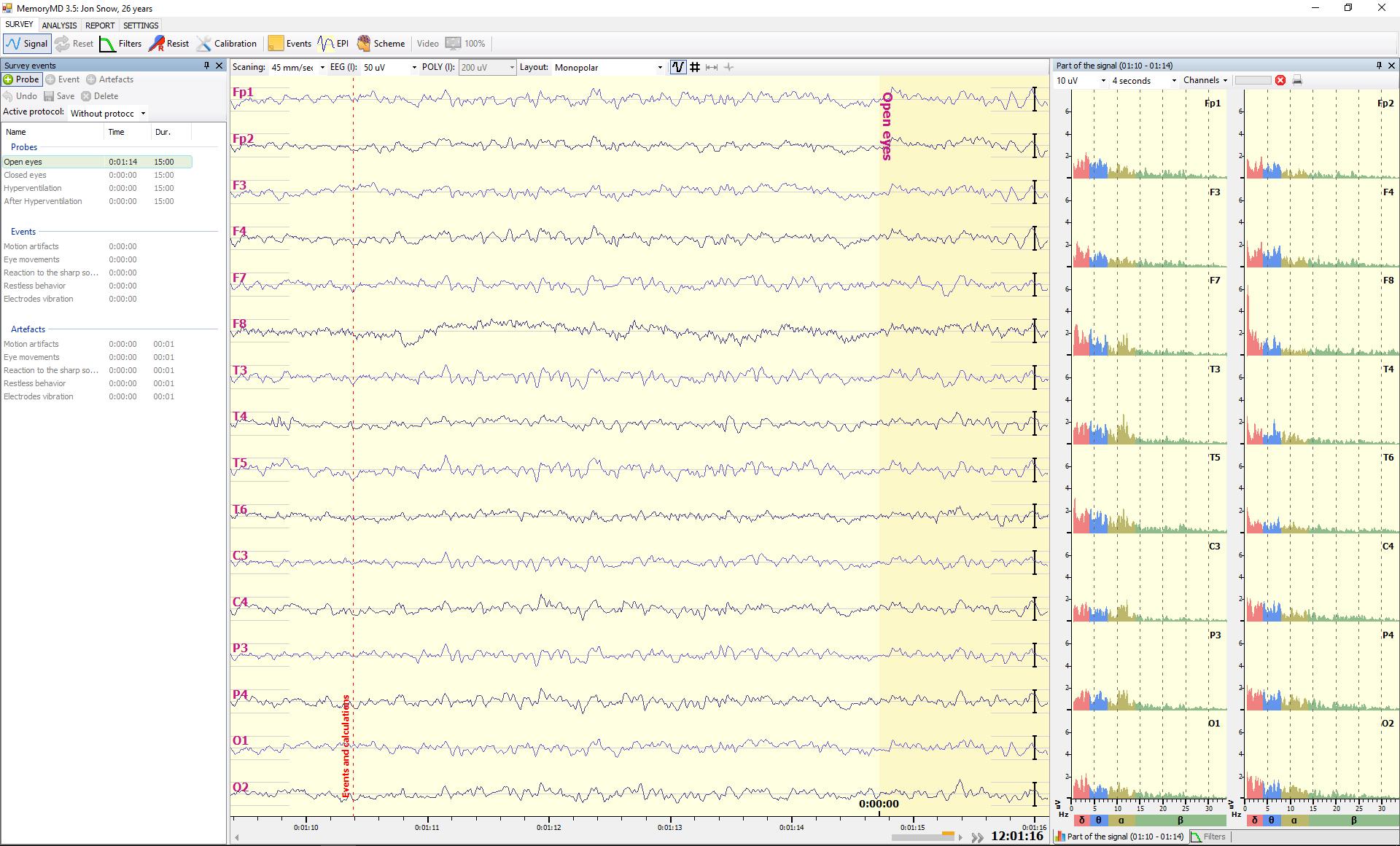 Spectrum of EEG signal