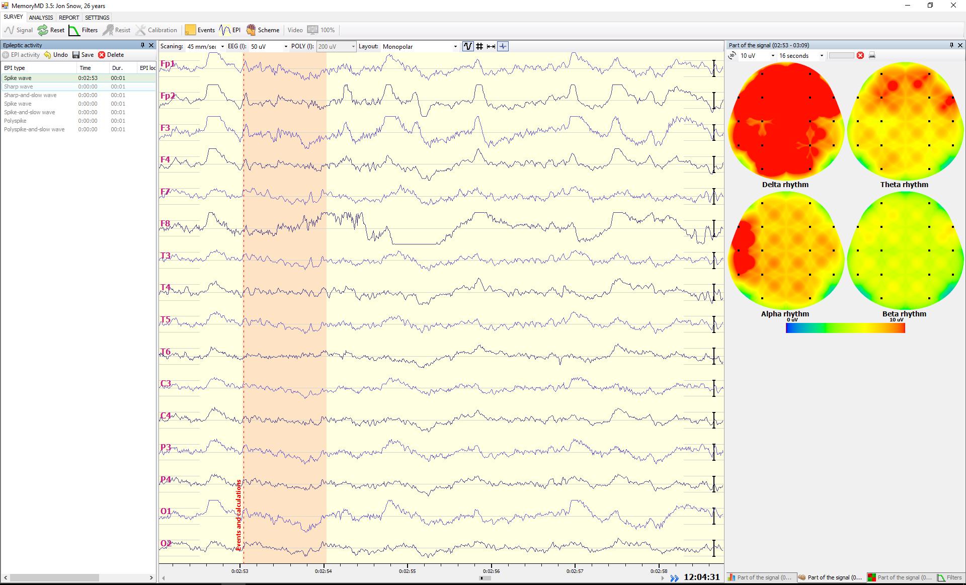 EEG signal and Heatmap