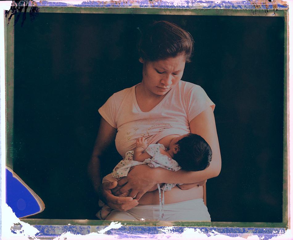 Mother Feeding Malnourished Baby