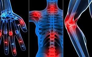 What-Are-Rheumatic-Diseases-1440x810.jpg