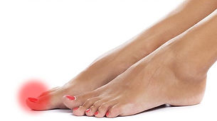 toenail-fungus-