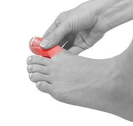 Ingrown-Toe-Nails.jpg