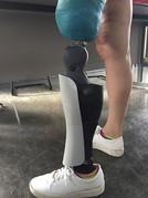 Capa estética para prótese