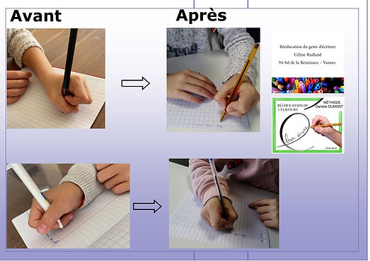 Avant_Après_Mila_et_Zoé_3_séances.jpg