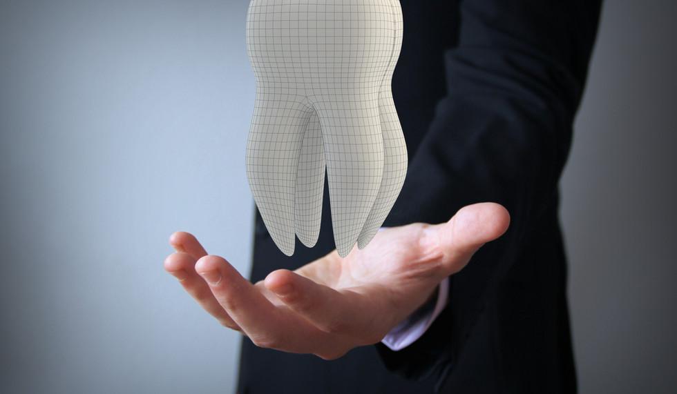 Dental Implant California