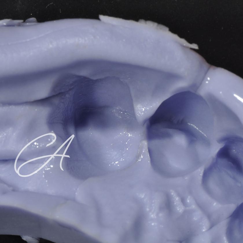 Prima della rimozione della corona del paziente, si prende un'impronta di essa per la realizzazione di un provvisorio diretto in materiale composito.