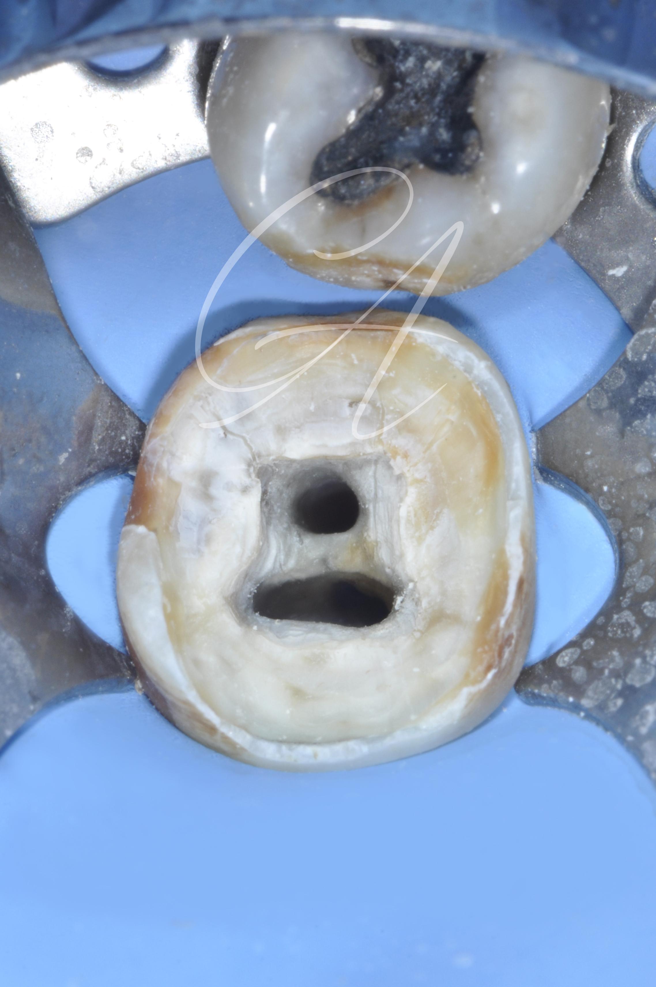 Fase intraoperatoria