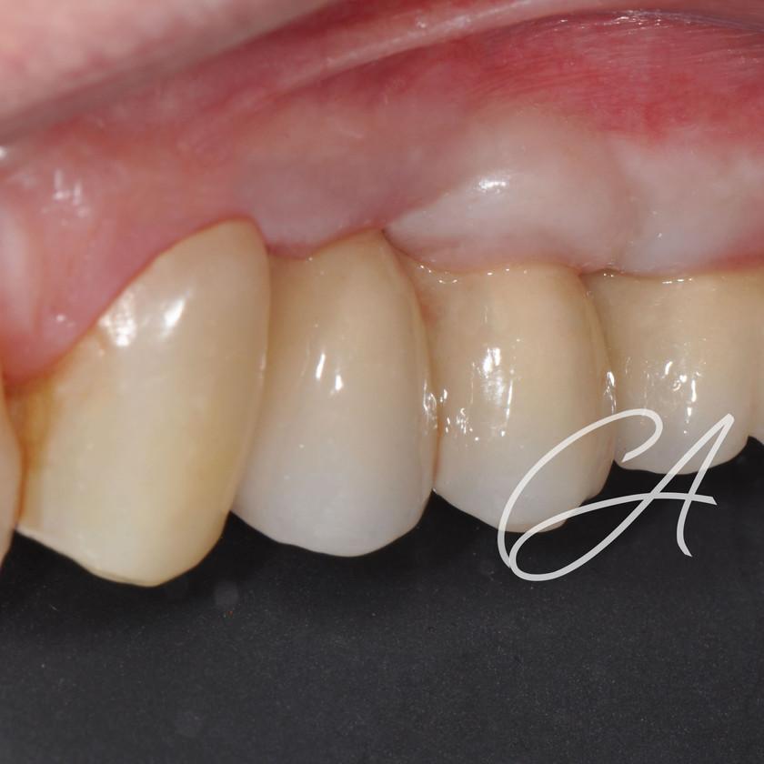 Definitivo (vista laterale) appena posizionato con leggera ischemia tissutale.