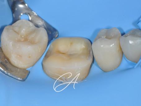 Riabilitazione di un dente con un intarsio