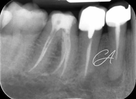 Riabilitazione multidisciplinare del primo e secondo premolare nel quarto quadrante (denti 44 e 45)
