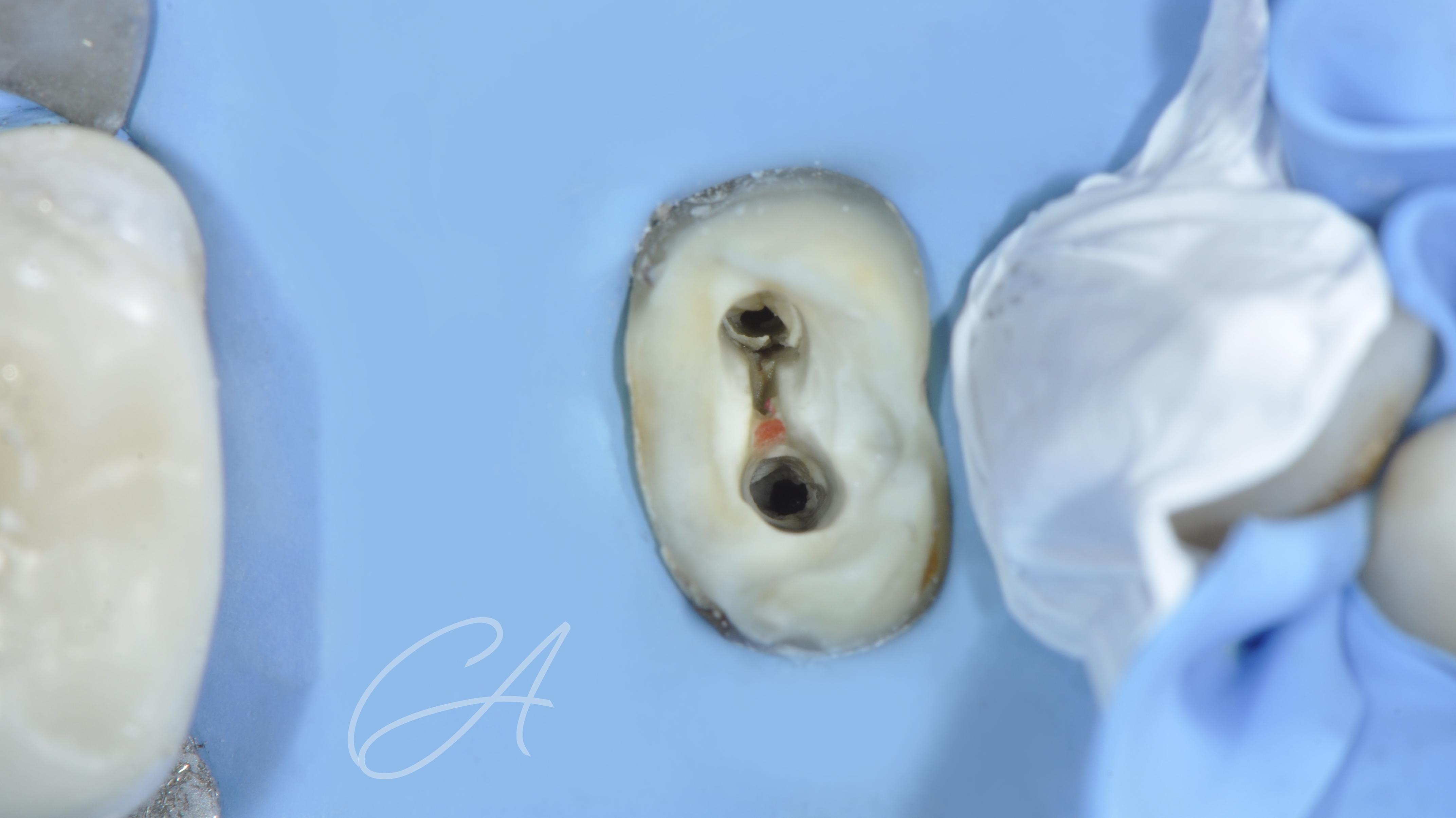 Detersione della cavità residua